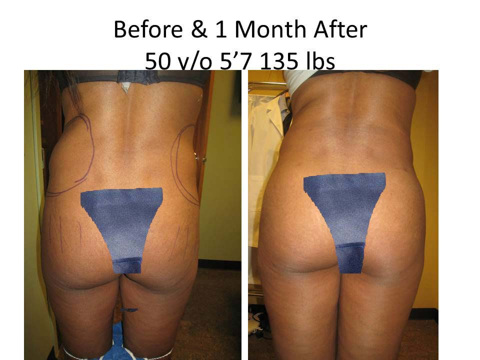 Brazilian Buttlift 50 Y/O