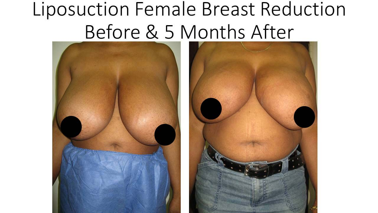 Liposuction Female Breast Reduction