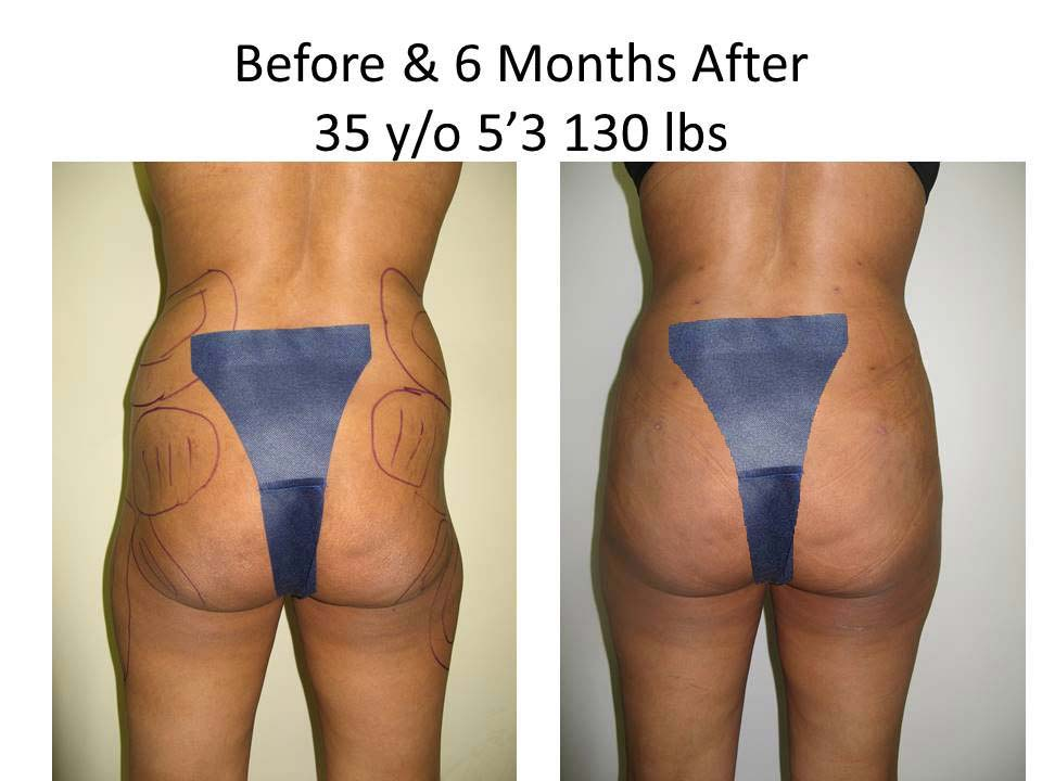 Brazilian Buttlift results before and after photo