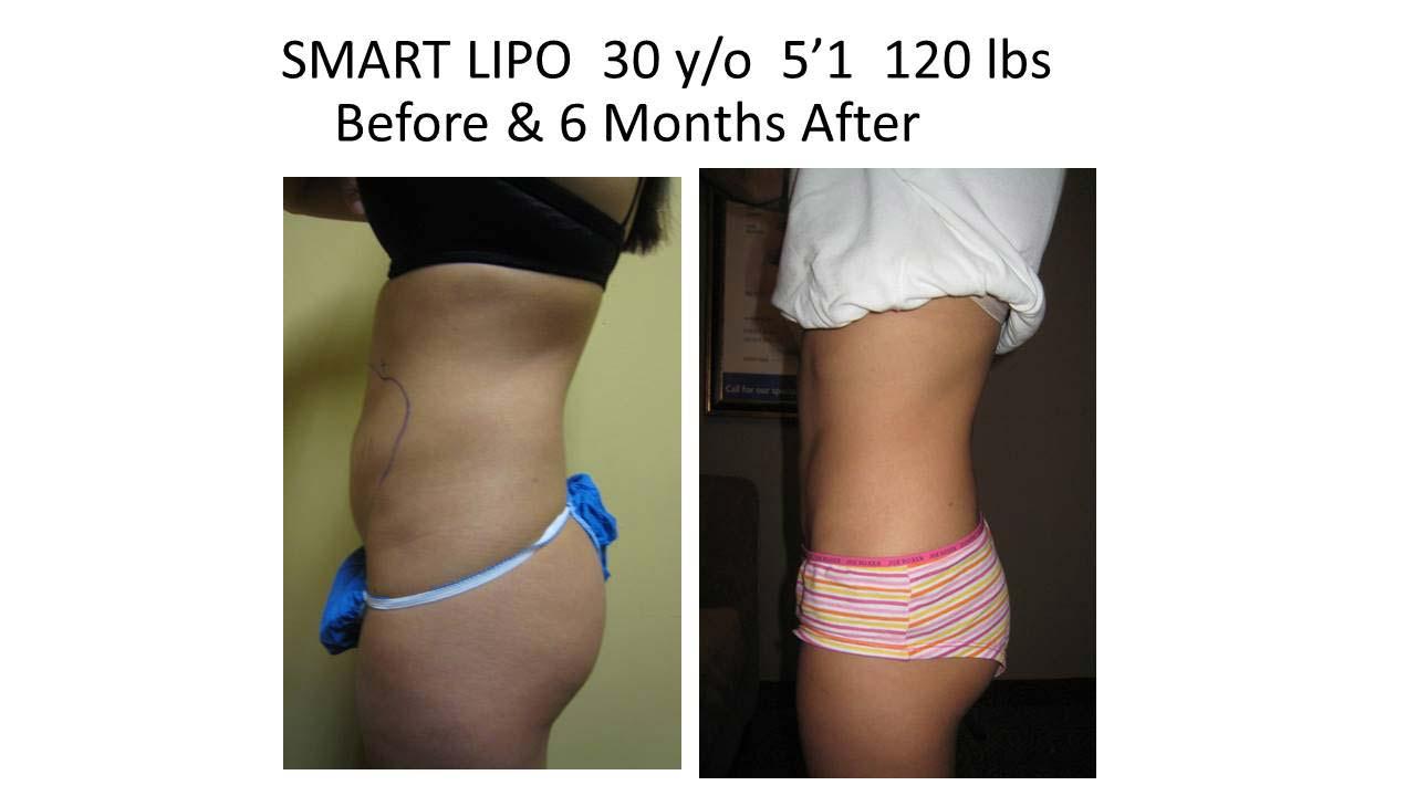 Smartlipo 30 Y/O woman 6 Months