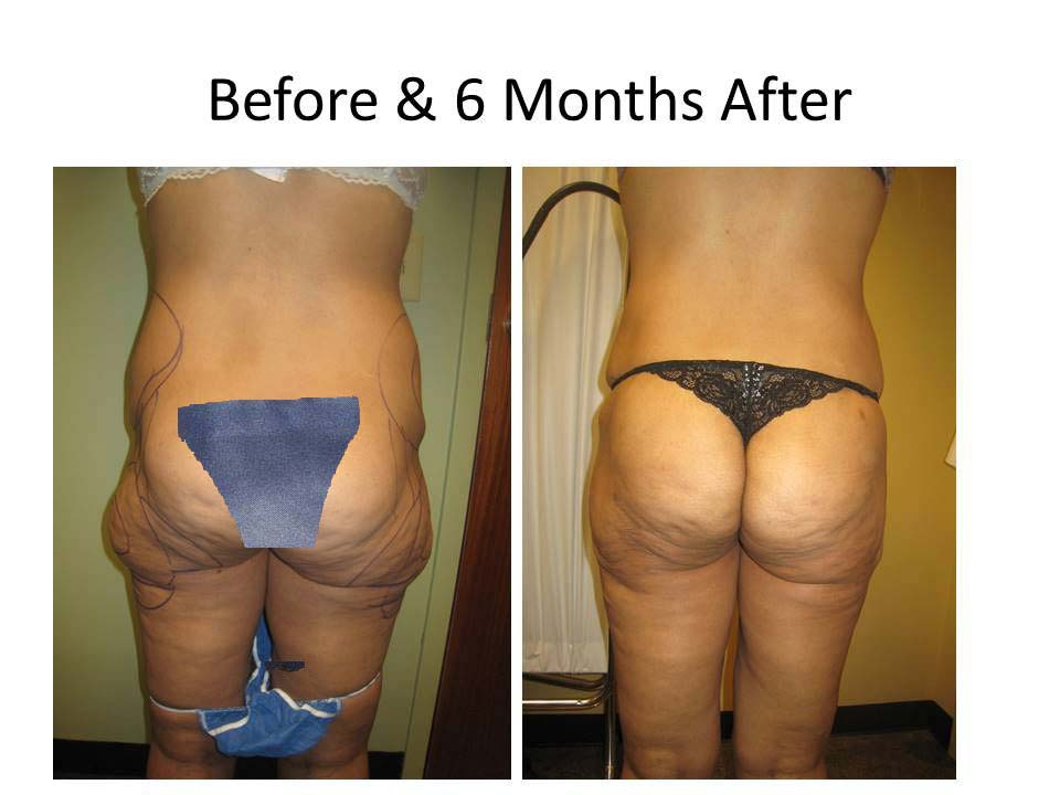 Brazilian Buttlift results2