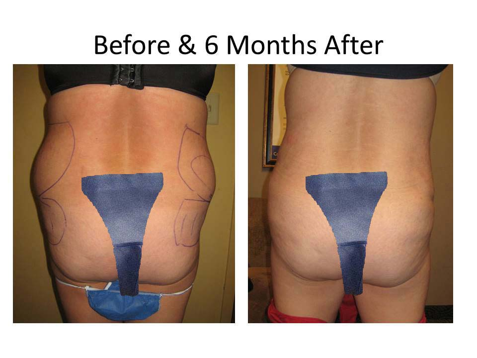 Brazilian Buttlift results before and after