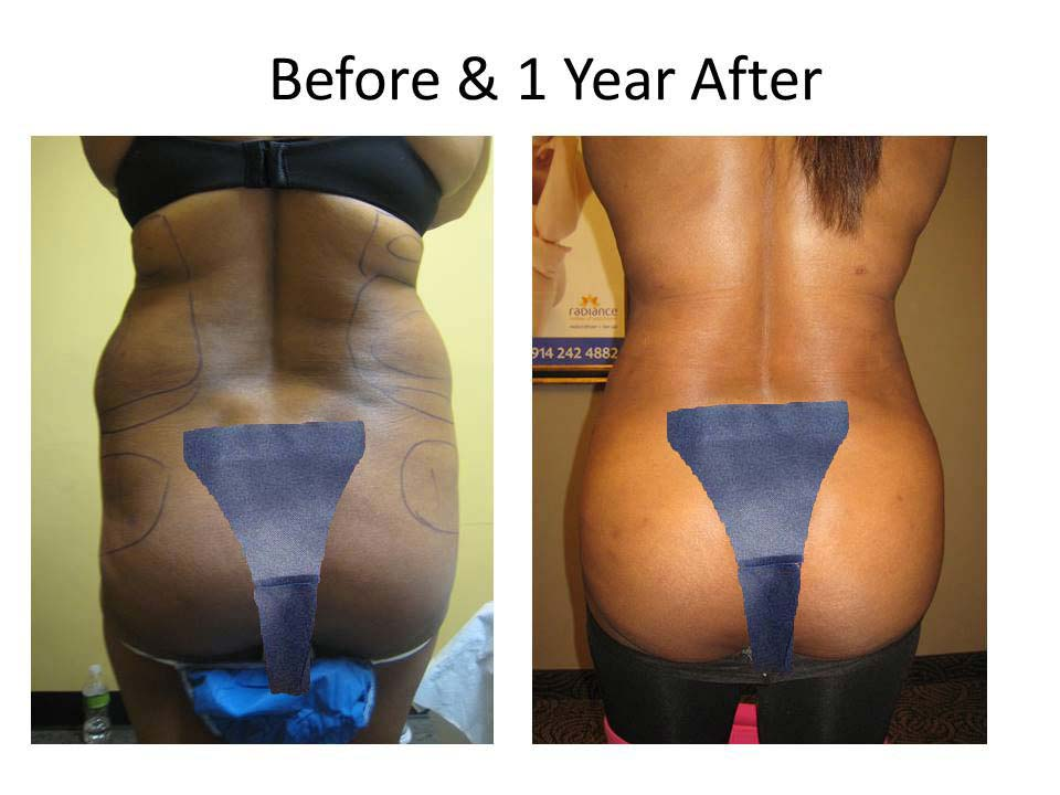 Brazilian Buttlift of woman results