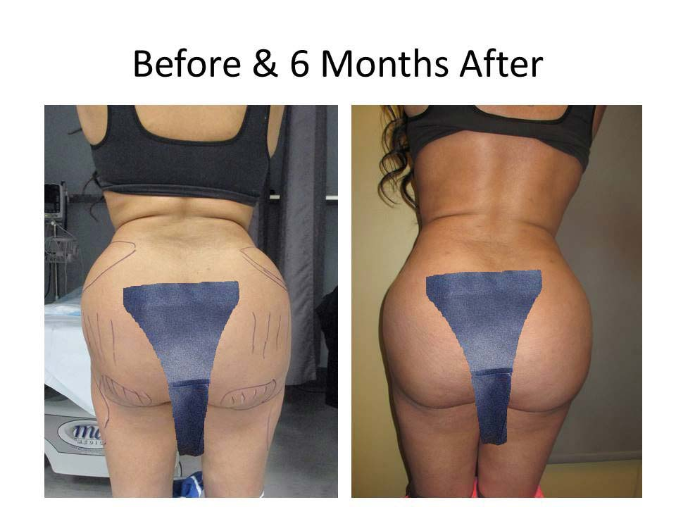 Brazilian Buttlift of woman
