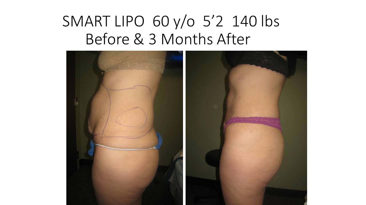 Smartlipo 60 Y/O Woman results