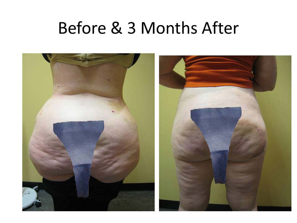 Brazilian Buttlift results photo