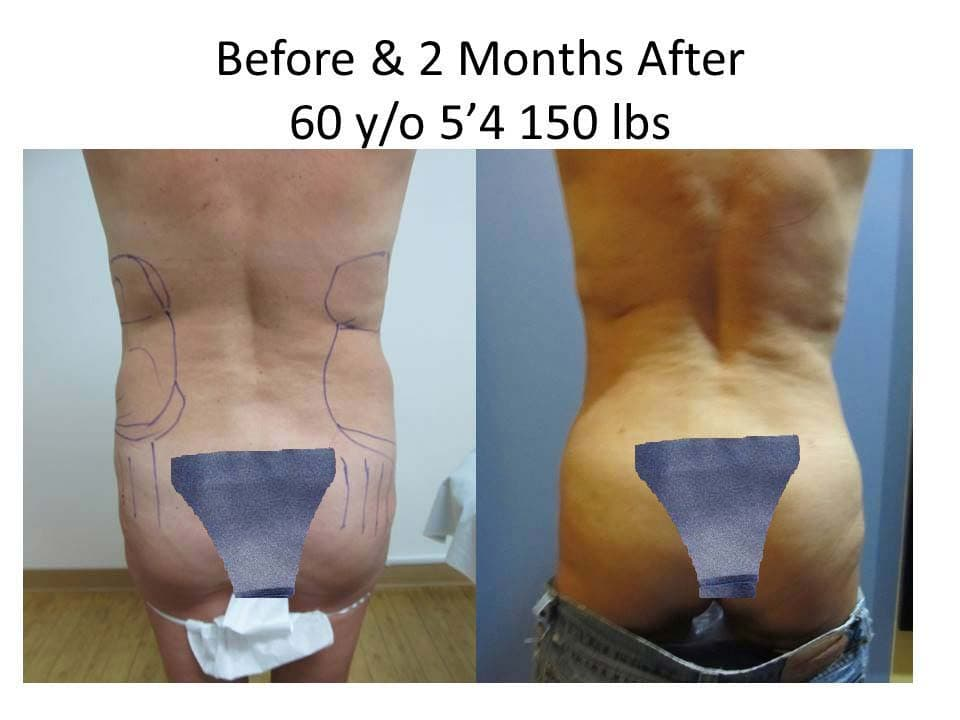 Brazilian Buttlift 60 Y/O