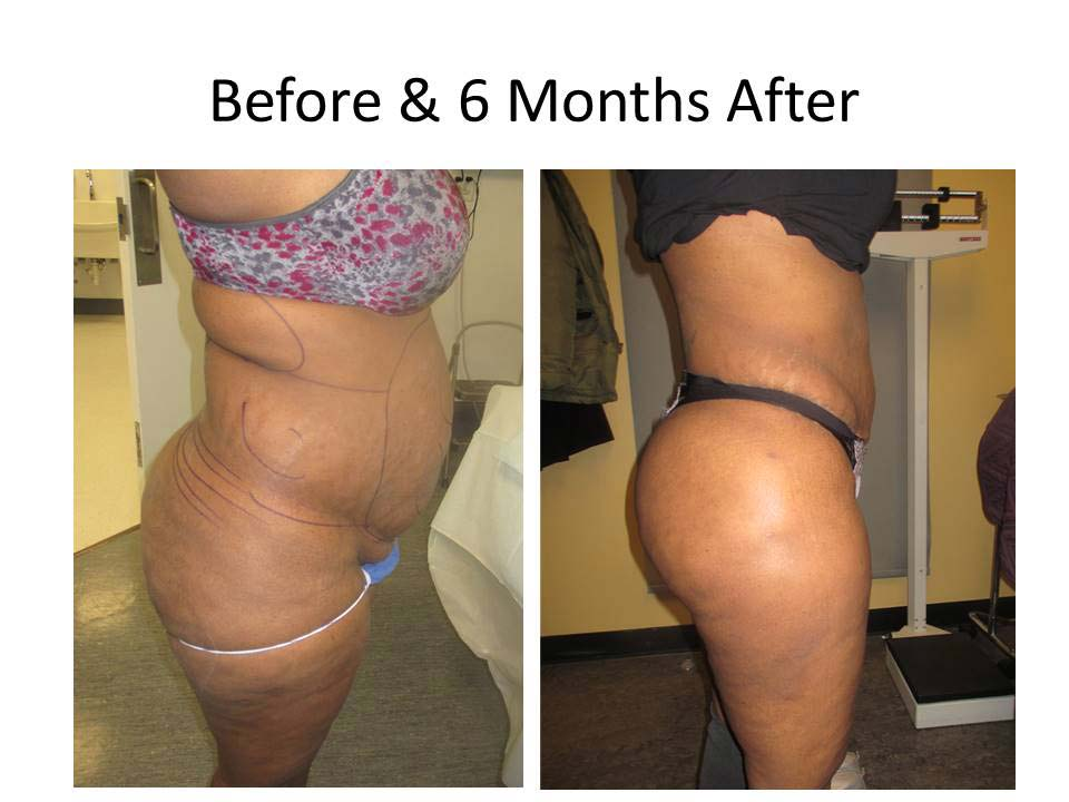 Brazilian Buttlift before and after results