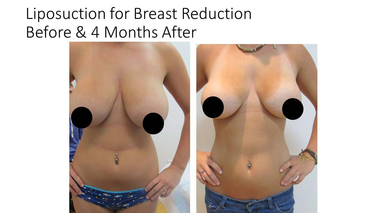 Liposuction For Breast Reduction woman 4 Months