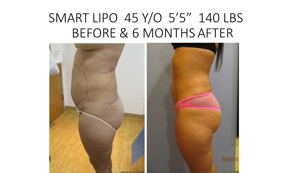 Smartlipo 45 Y/O Woman
