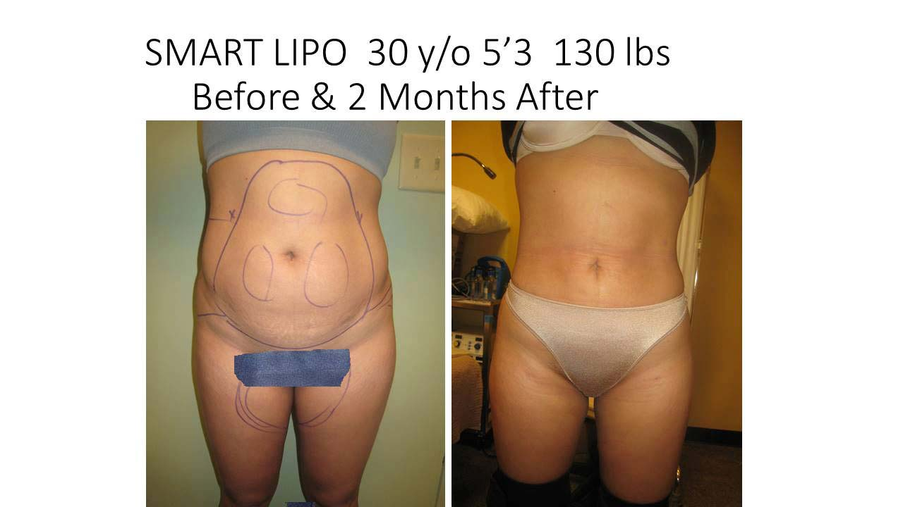 Lipo And Fat Transfer breasts woman 3 Months