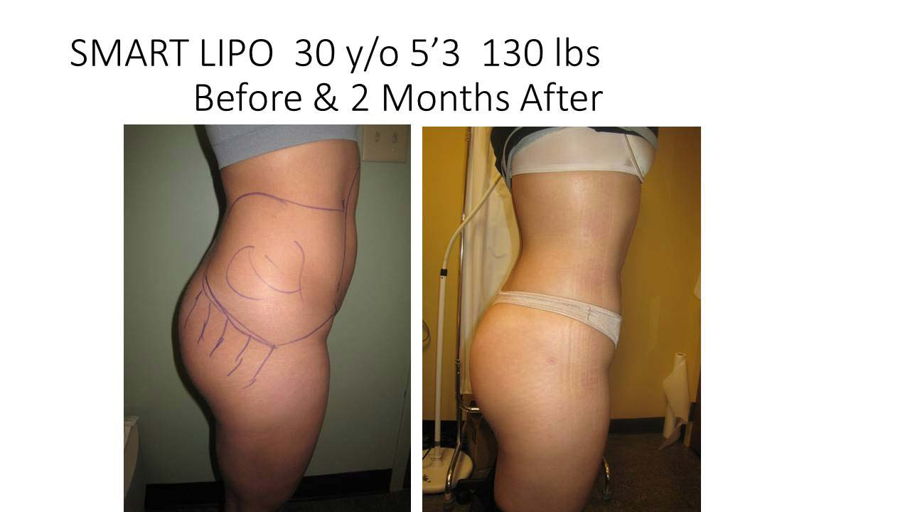 Smartlipo 30 Y/O woman photo of results