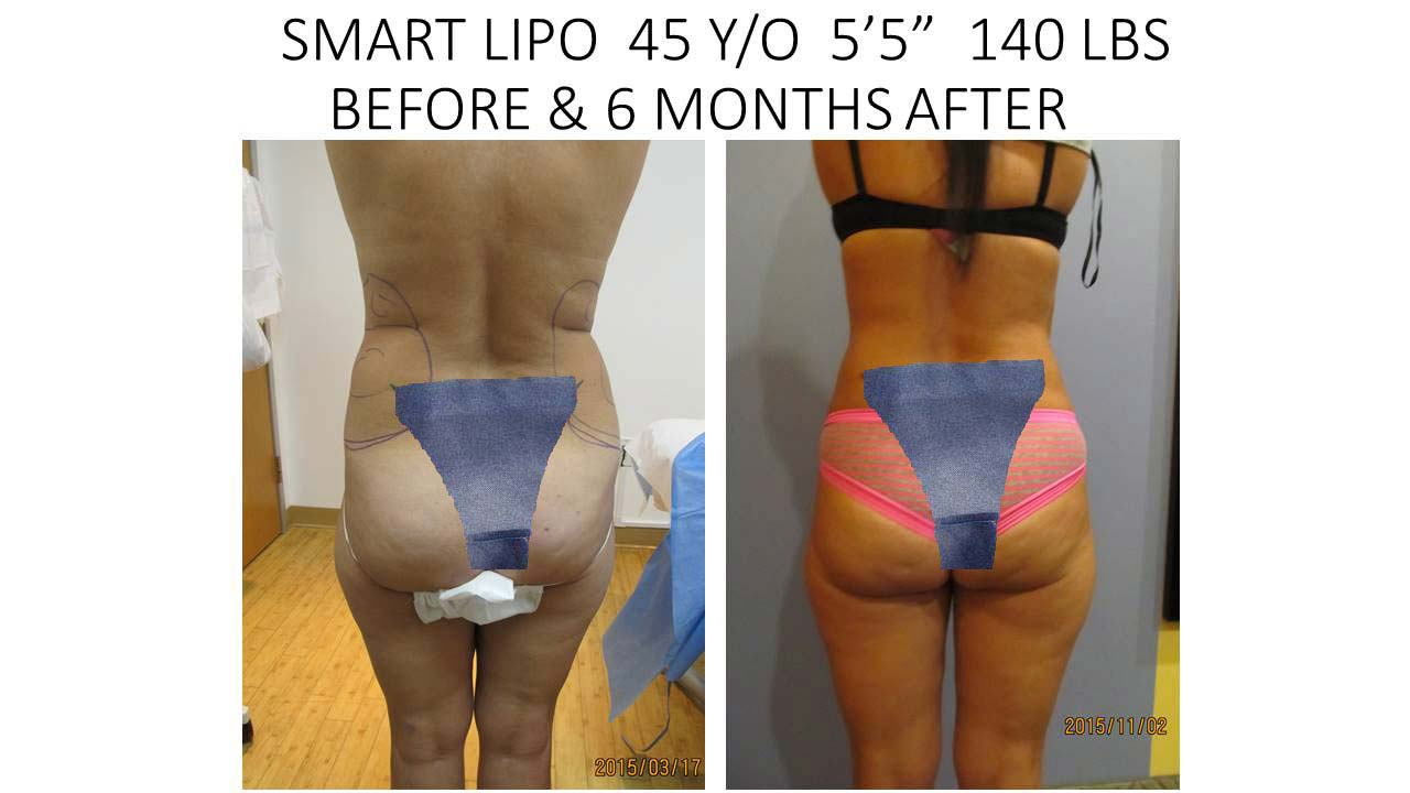 Smartlipo of 45 Y/O