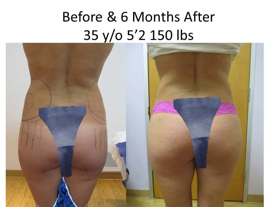 Brazilian Buttlift 35 Y/O