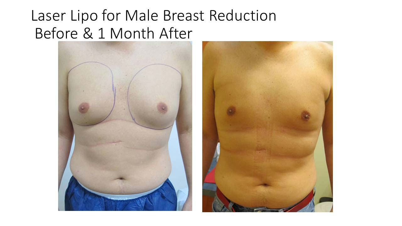 Laser Liposuction Male Breast Reduction