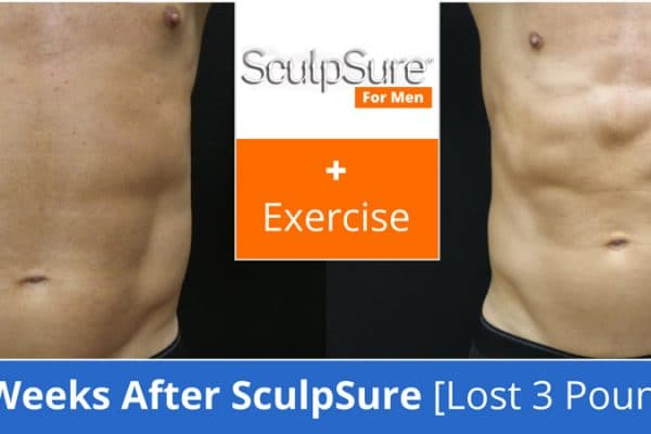 SculpSure Plus Exercise