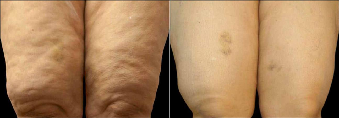 exilis-before-after-1