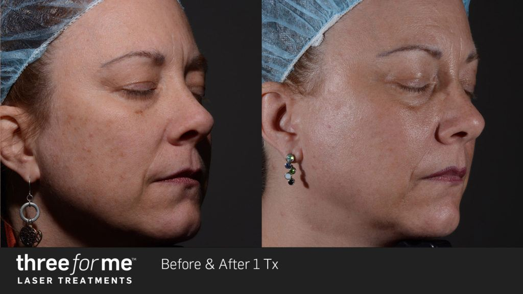 ThreeForMe Before and After - Treatment available at Radiance of Palm Beach