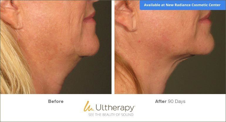 Ultherapy Before & After Image for New Radiance Cosmetic Center Palm Beach