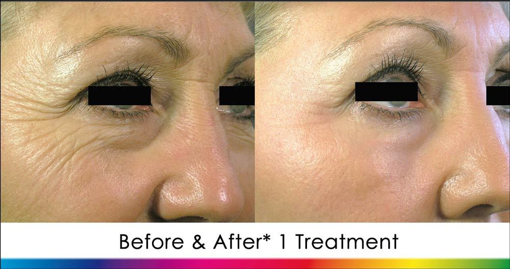 Laser Skin Resurfacing Before & After image 2