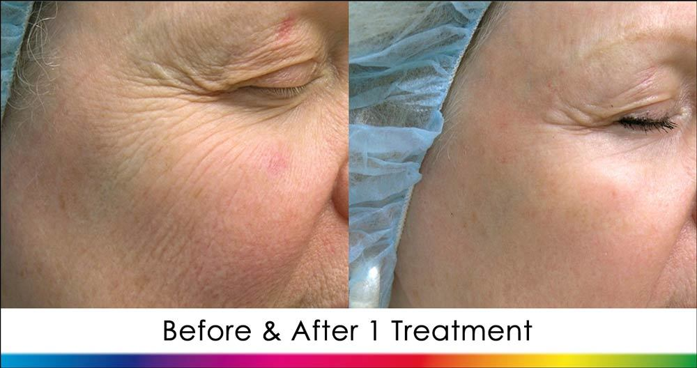 Ablative Laser Skin Rejuvenation New Radiance Cosmetic Center Palm Beach Before & After