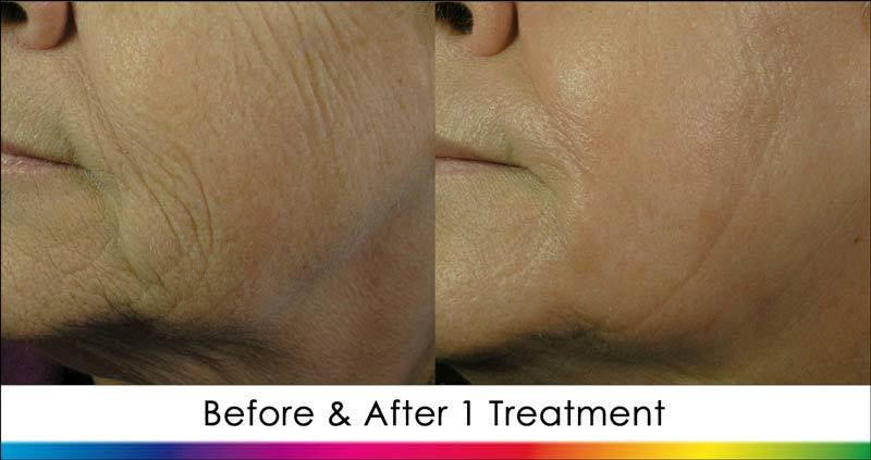 Before & After Ablative Laser Treatment of Female Facial Wrinkles New Radiance Cosmetic Center Palm Beach