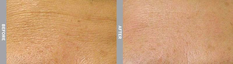 Hydrafacial Palm Beach Wrinkles Before and after