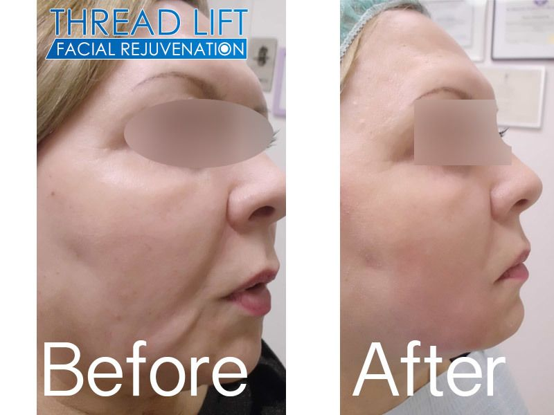 Nova Thread Lift Before and After 1