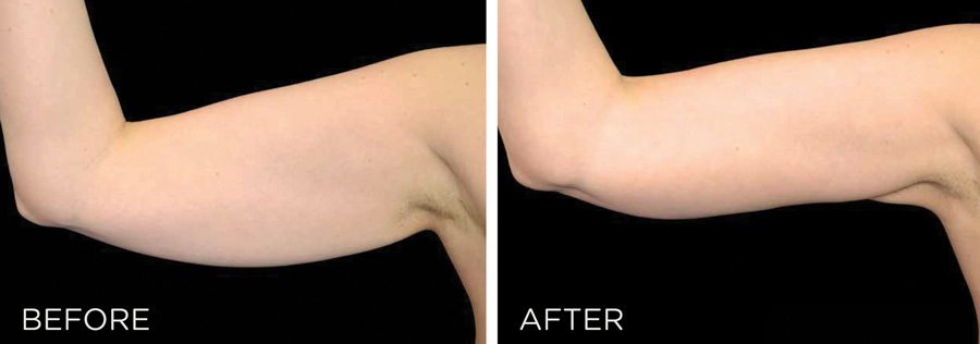 Ultra Sculpting Before and After New Radiance Arns