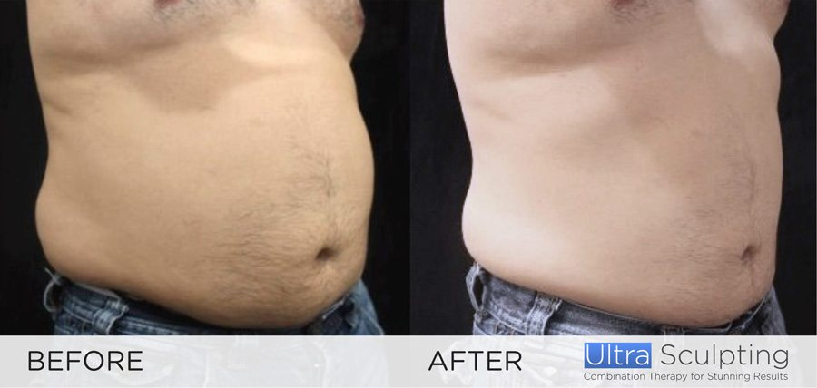 Ultra Sculpting New Radiance Male Before & after 2