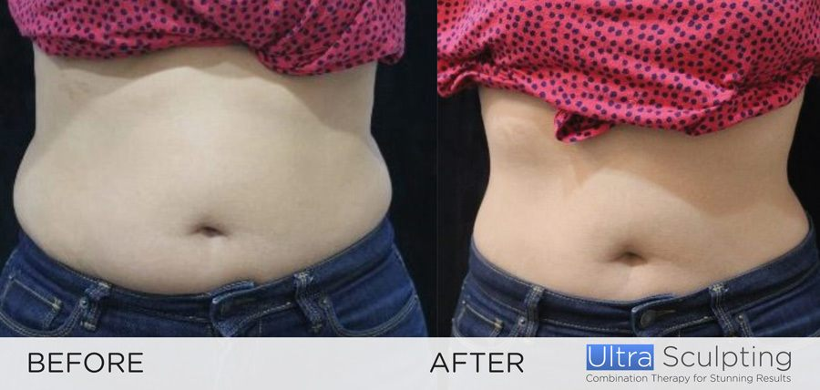 Ultra Sculpting Female Abs before and after 1