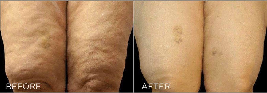 Ultra Sculpting Before & After legs 1