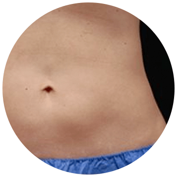 Fat Freezing Treatment Area