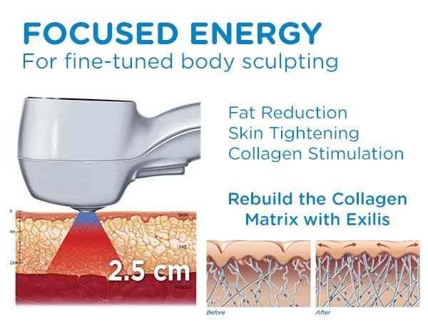 CoolSculpting Bonus Treatment: Exilis Skin Tightening
