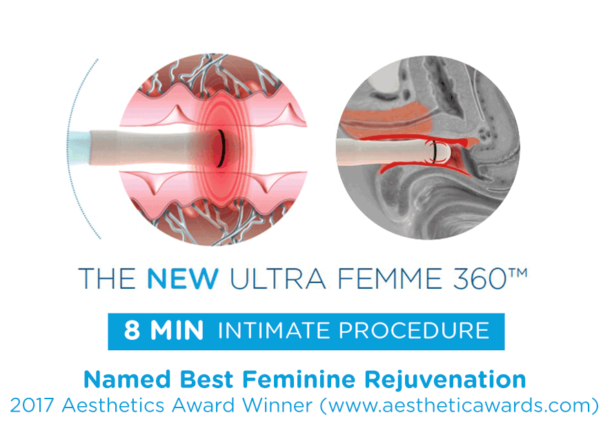 How Vaginal Rejuvenation works image - palm beach new radiance