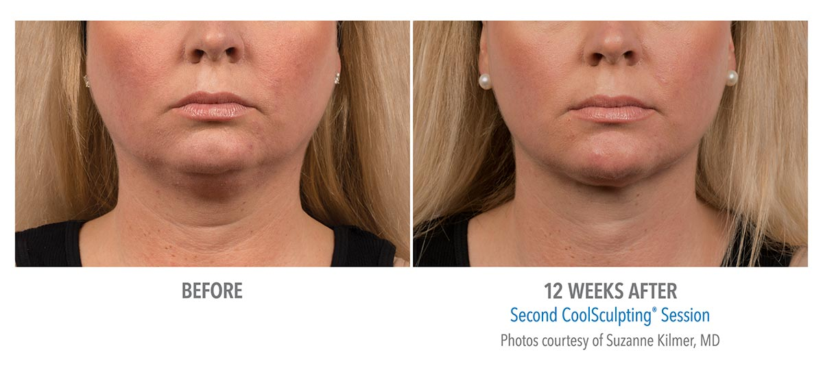 coolsculpting for chin neck jawline results female 1