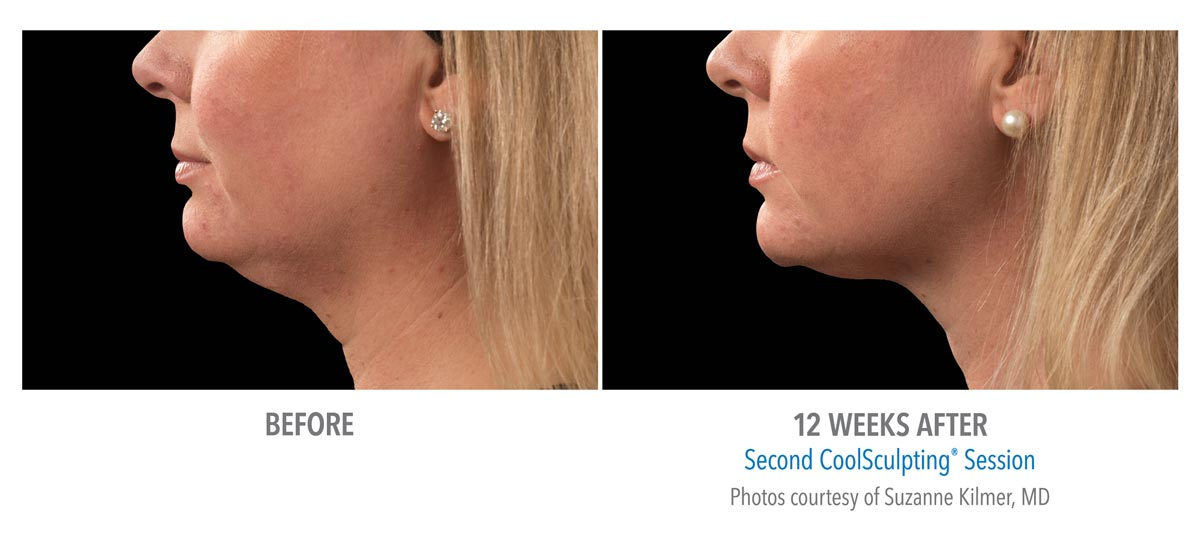 coolsculpting for chin neck jawline results female 2