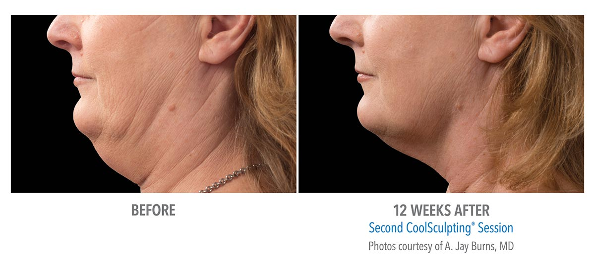 coolsculpting for chin neck jawline results female 3
