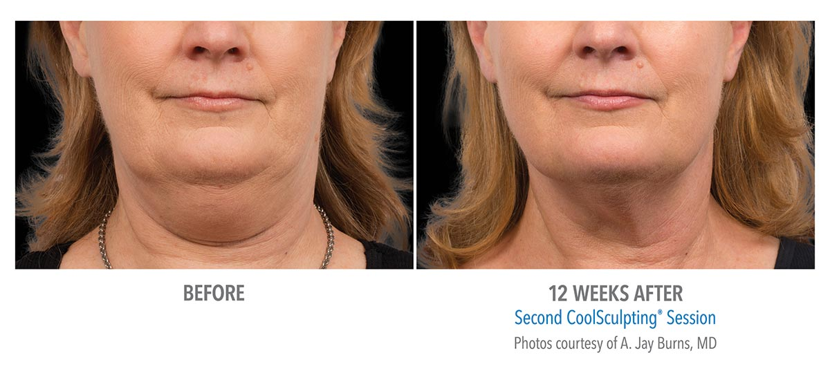 coolsculpting for chin neck jawline results female 4