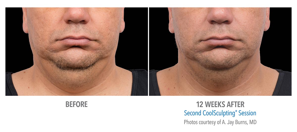 coolsculpting for chin neck jawline results male 1
