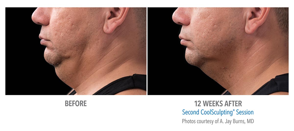 coolsculpting for chin neck jawline results male 2