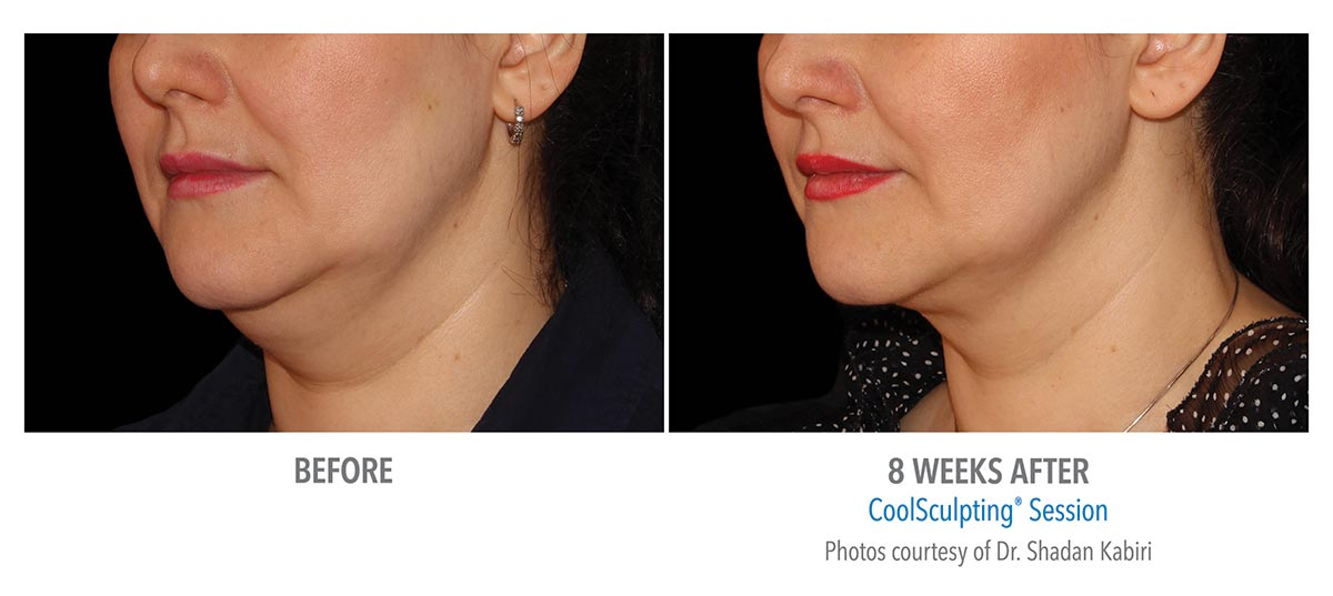 coolsculpting for chin neck jawline results female 5