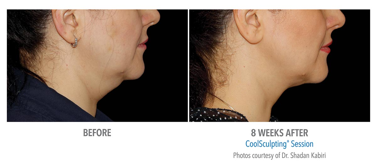 coolsculpting for chin neck jawline results female 6
