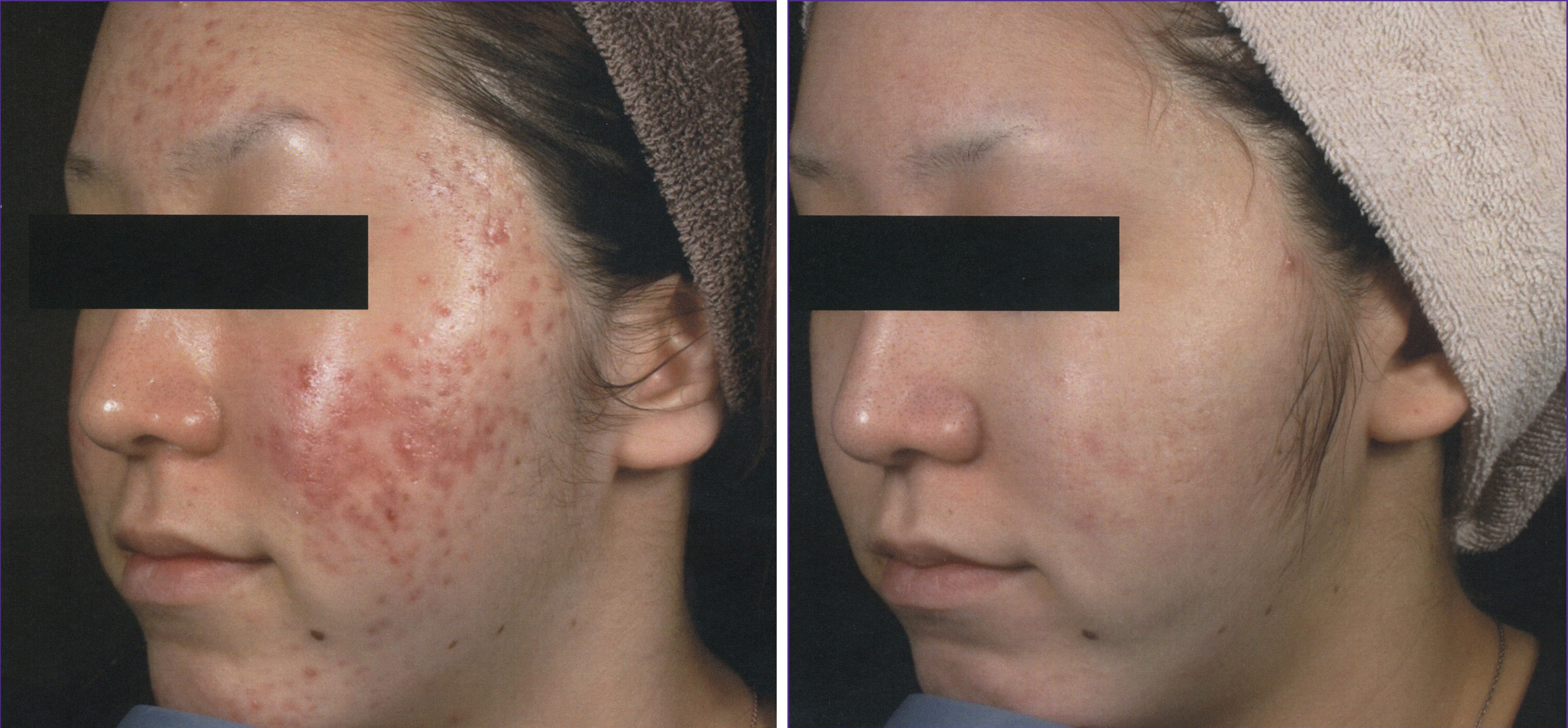 Intensif Microneedling for Acne Scars Before and After 3