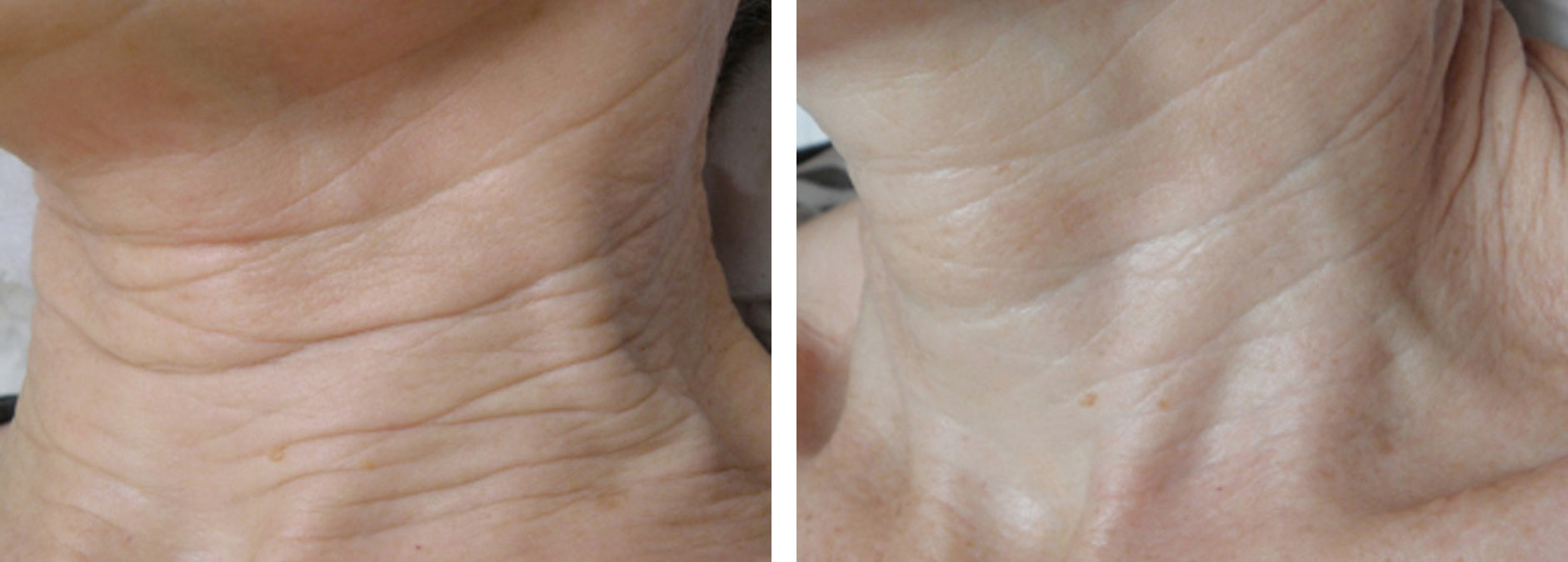 Intensif Microneedling with Radio Frequency Before and After 3