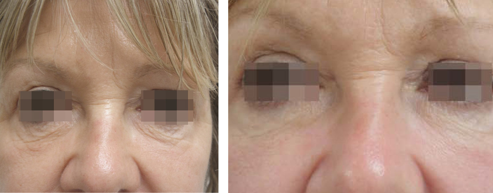 Intensif Microneedling with Radio Frequency Before and After 4