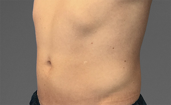 cooltone palm beach male abdomen before