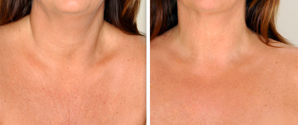 fractional co2 laser skin resurfacing before after chest 1