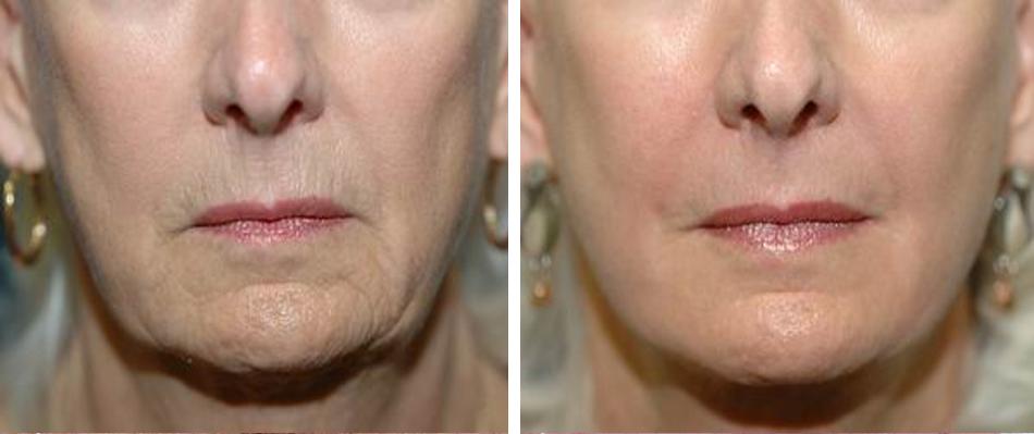 fractional co2 laser skin resurfacing before after face 1