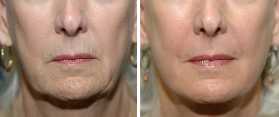 fractional co2 laser skin resurfacing before after face 1